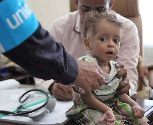 UN: Half of Yemeni children under 5 face acute malnutrition